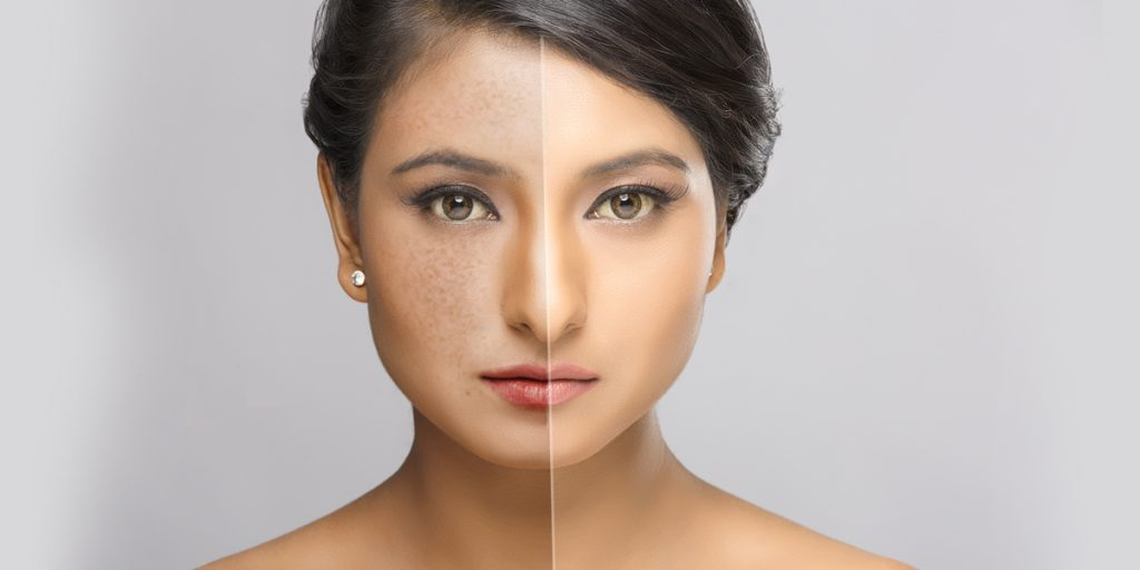 melanocytes production : Skin Whitening Treatment
