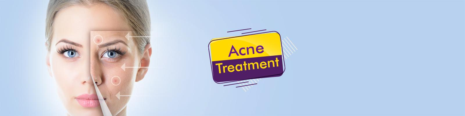 Best Acne Scar Removal Treatment