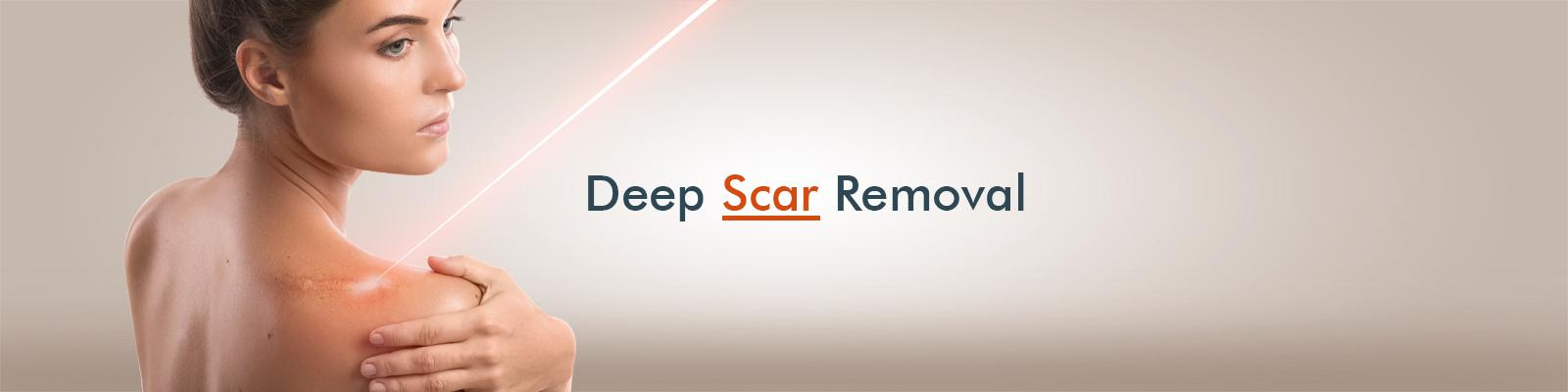 Deep Scar Removal And Stretch Marks Removal Treatments