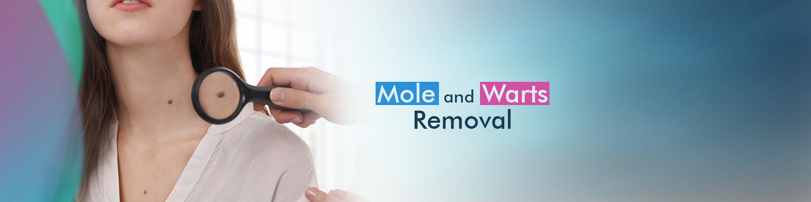 Painless Laser Mole And Wart Removal