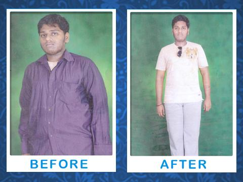 Kolors Weight Loss Clinic - Before and After Image