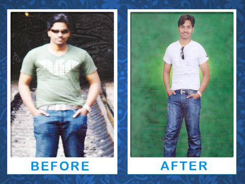 Kolors Weight Loss Treatment - Before and After Image